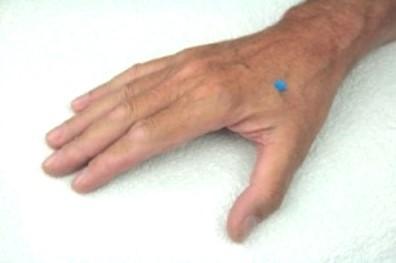Mit Akupressurpunkt-3 direkt leicht gelassen sein