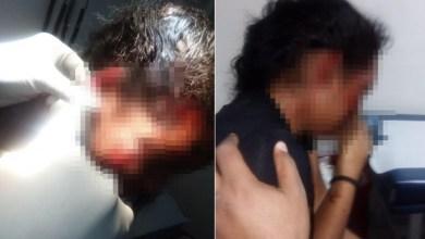 Photo of Hombre le corta oreja a expareja por celos en San Cristóbal