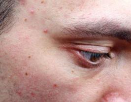 huile essentielle cicatrice acne