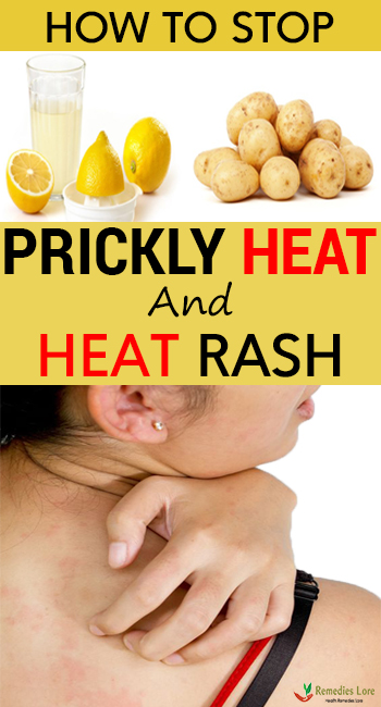How To Stop Prickly Heat And Heat Rash