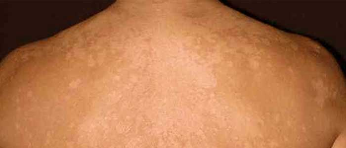 Powerful Home Remedies for Tinea Versicolor