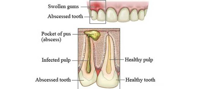 Home Remedies for an Abscess Tooth