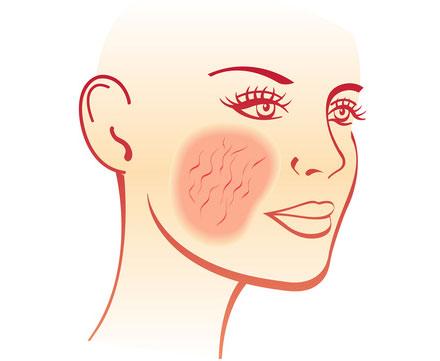 traitement-de-la-couperose