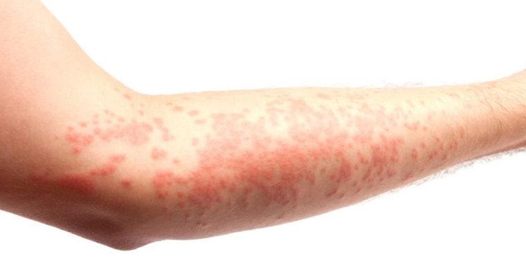 l-eczema-de-contact
