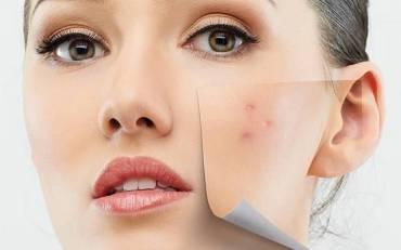 reactions-cosmetiques-naturels