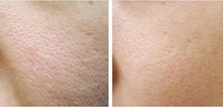 comment resserrer les pores dilat s quelles en sont les causes. Black Bedroom Furniture Sets. Home Design Ideas
