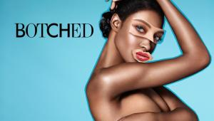 Botched Cancelled Or Renewed For Season 3?