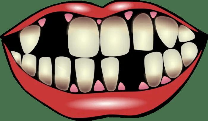 Hardlopers en tanden