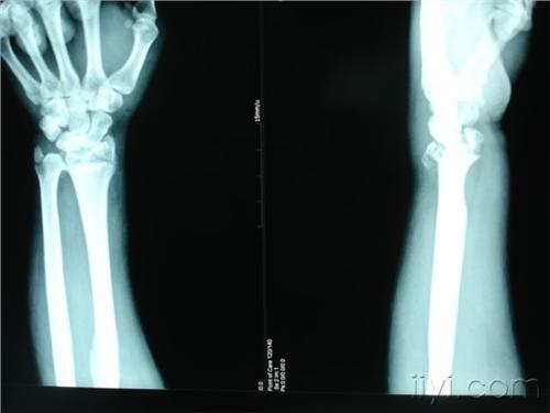 右橈骨遠端骨折伴右尺骨莖突撕脫_第二人生