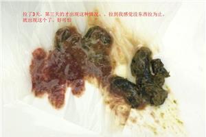 盲腸癌的癥狀 教你 直腸癌的早期癥狀 直腸癌的自我檢查措施_第二人生