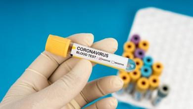 Photo of Em 24 horas Alagoas registra 81 novos casos de coronavírus