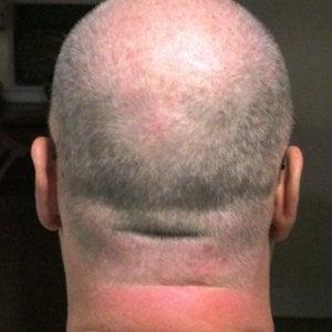 """La denuncia: """"Un farmaco per curare la caduta dei capelli mi ha reso impotente"""""""