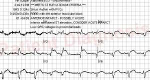12 lead EKG