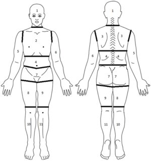 Diagram of body segmented into regions for assessment of