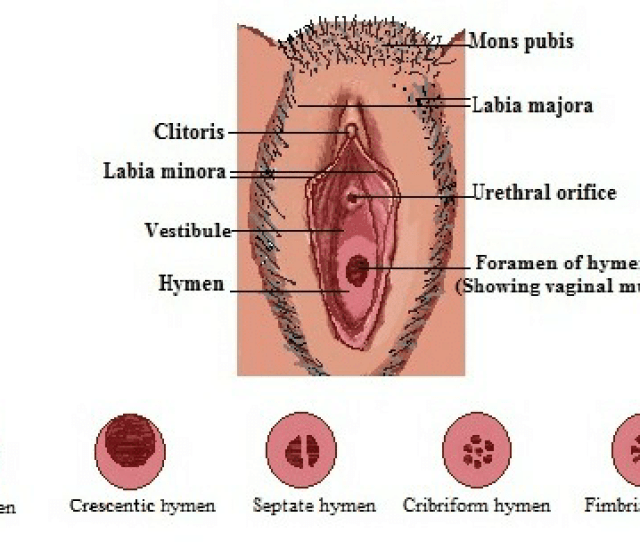 Normal Anatomy Of Vulva And Variations In The Hymenal Appearance