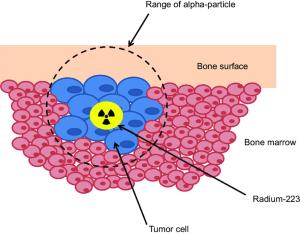 Mechanism of action of radium223   Download Scientific