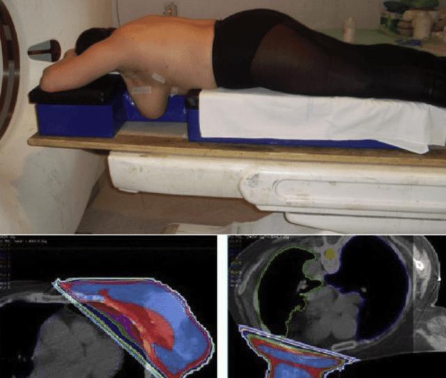 Posicionamiento En Decubito Prono En Una Paciente Con Mama Conservada Izquierda Lineas De Isodosis En