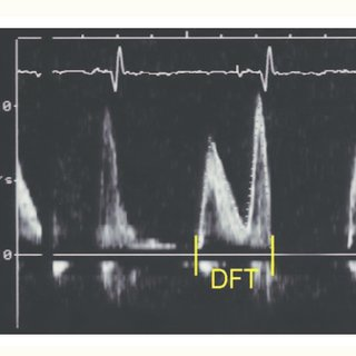 biventricular pacing for atrioventricular block and - 320×320