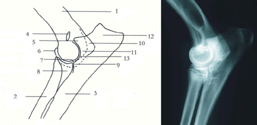 Schematic drawing and radiographic anatomy of the elbow ...