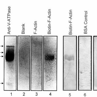 (PDF) The Amino-terminal Domain of the B Subunit of ...