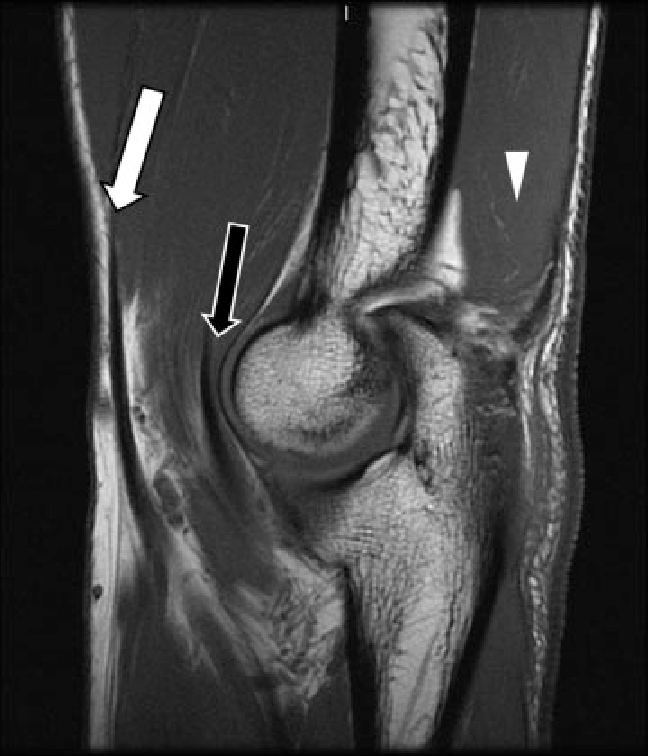 Normal anatomy of the elbow. Sagittal T1-weighted image ...