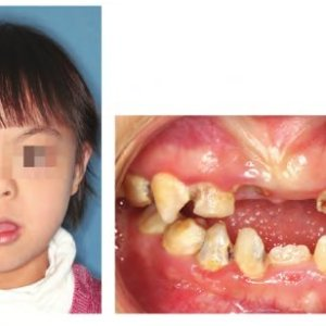 Common jaw relationships of Down Syndrome subjects A