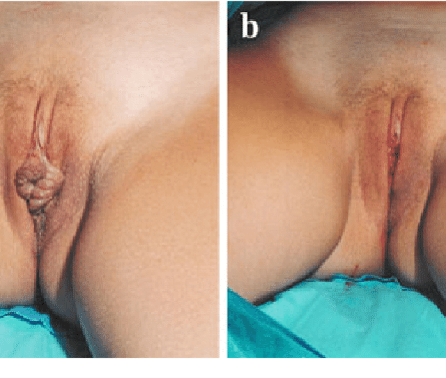 A A 34 Year Old Dancer With Protruding Labia Minora She Said That It Was An Embarrassment When In A Bathing Suit Or Tights And Especially When Nude B