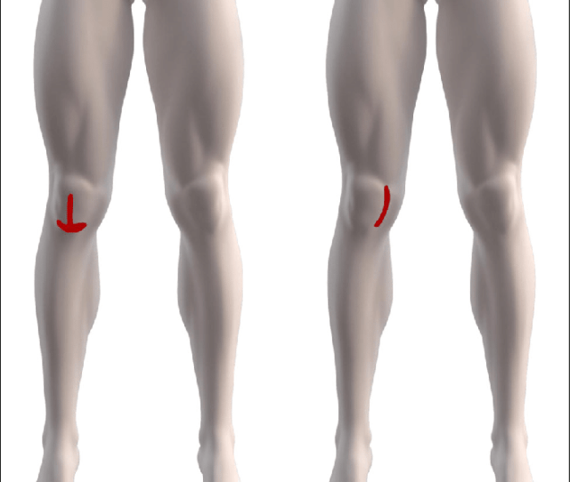 Knee Pain Drawings Redrawn In Similarity To Knee Pain Drawings Acquired From The Pfp Cohort