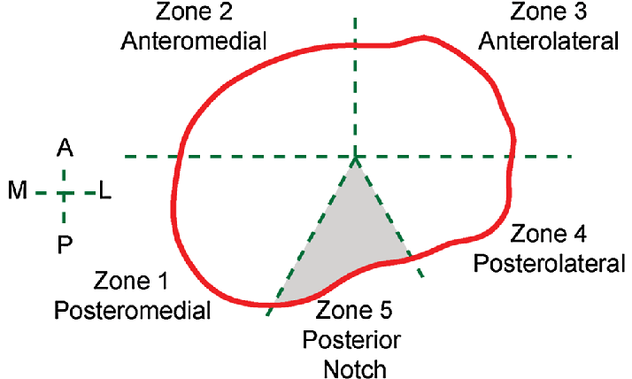 Definition of anatomic zones. The posterior notch (zone 5 ...