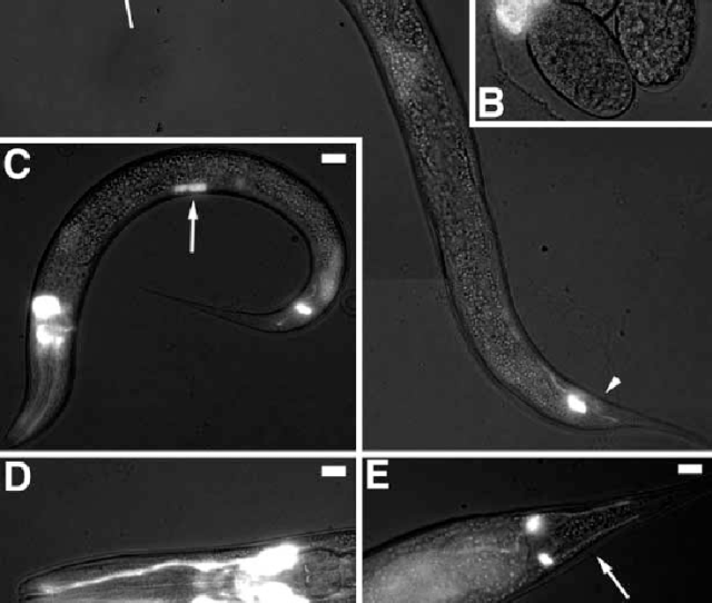 A E Expression Pattern Of Nud 1gfp Observed In Embryonic Larval And Adult Stages Of C Elegans Carrying The Ppd95 77 Ncp Construct