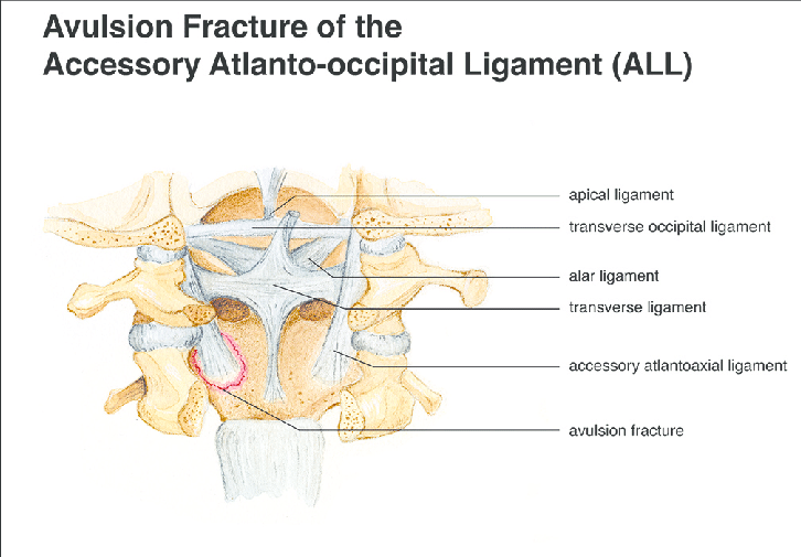 Diagram Of Craniocervical Junction