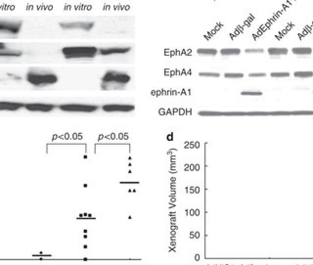 Hic Inhibits Tumorigenic Behavior Of Human Breast Cancer Cells In Vivo A Western