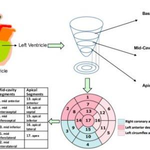 17segment model of the left ventricle | Download Scientific Diagram