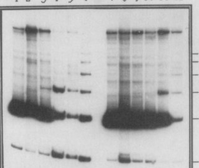 Amplification By Pcr Of The 132 Bp Tandem Repeats In Mdv 1 Dna Of Two