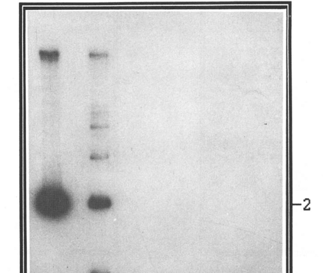 Radioactive Pcr To Detect The 132 Bp Repeats In Pathogenic Mdv I And Vaccine Strains Of Mdv 2 Sbi And Mdv 3 Hvt To Determine The Speciticity Of The