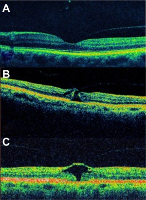 Fullthickness macular hole classification Notes: (A
