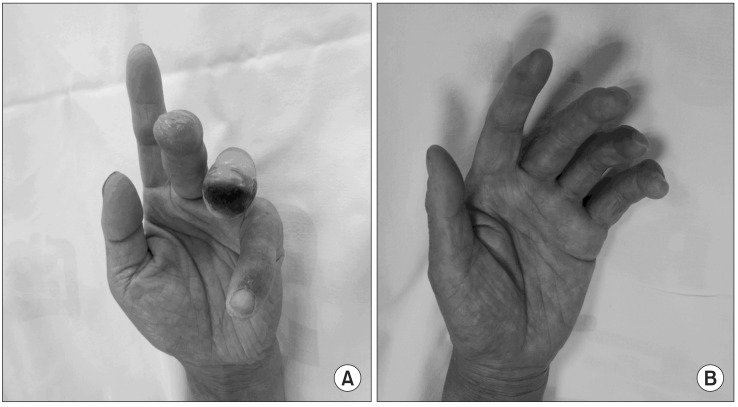 A Patient Has Shallow Ulceration On The Third Finger And Deep Download Scientific Diagram