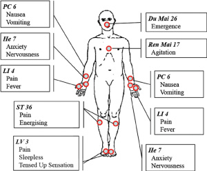Acupuncture points hand out The figure illustrates the