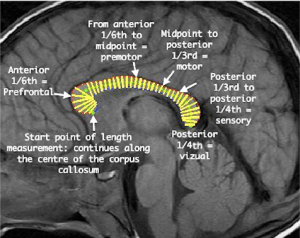 Predefined anatomical segments of the corpus callosum are demonstrated | Download Scientific