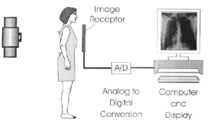 Schematic diagram of a digital radiography system