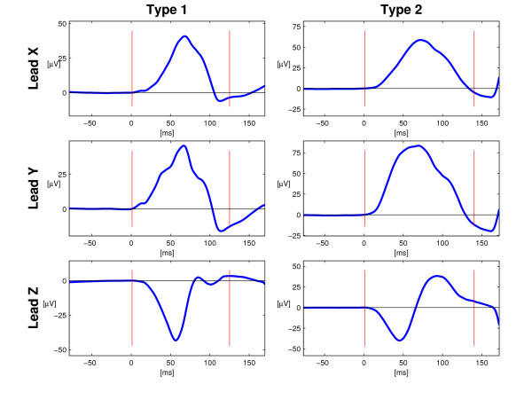 P Wave Morphology Type 1 And 2 The Two Principal
