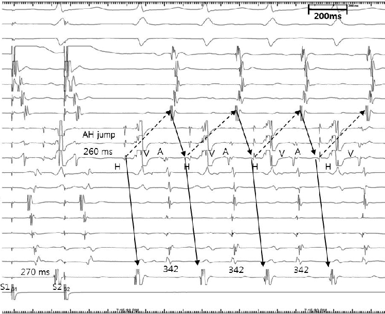 Initiation Of Atypical Atrioventricular Nodal Reentrant
