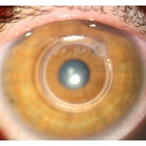 Leila Janani   PhD in Biostatistics   Iran University of Medical     Figure 1  Slit lamp examination of an eye with keratoconus one month and 3