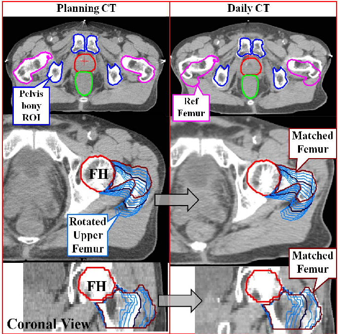 Pelvic bony anatomy used for CT registration (top left) and imported   Download Scientific