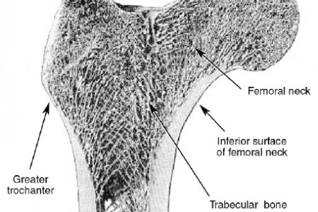 interior pictures femoral neck » Full HD MAPS Locations - Another ...
