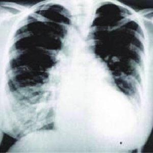 El electrocardiograma actual muestra corazón semivertical | Download Scientific Diagram