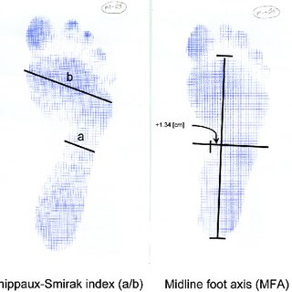 pdf foot and ankle problems in thai monks