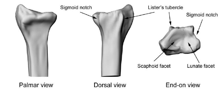 Anatomy of the distal radius. | Download Scientific Diagram