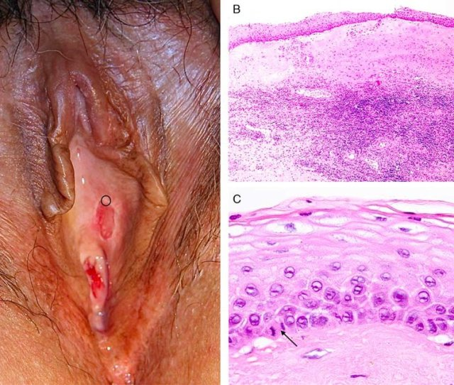 A Pallor Between Clitoris And Urethra Biopsy Sited At The Edge Of An Ulcer B Histopathology Consistent With Lichen Sclerosus Squamous Mucosa With