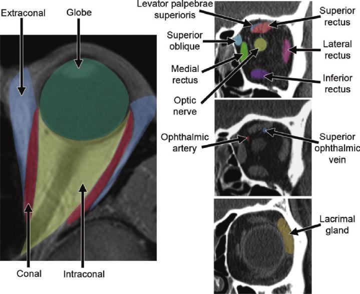 Normal orbital anatomy. Axial computed tomographic (CT ...